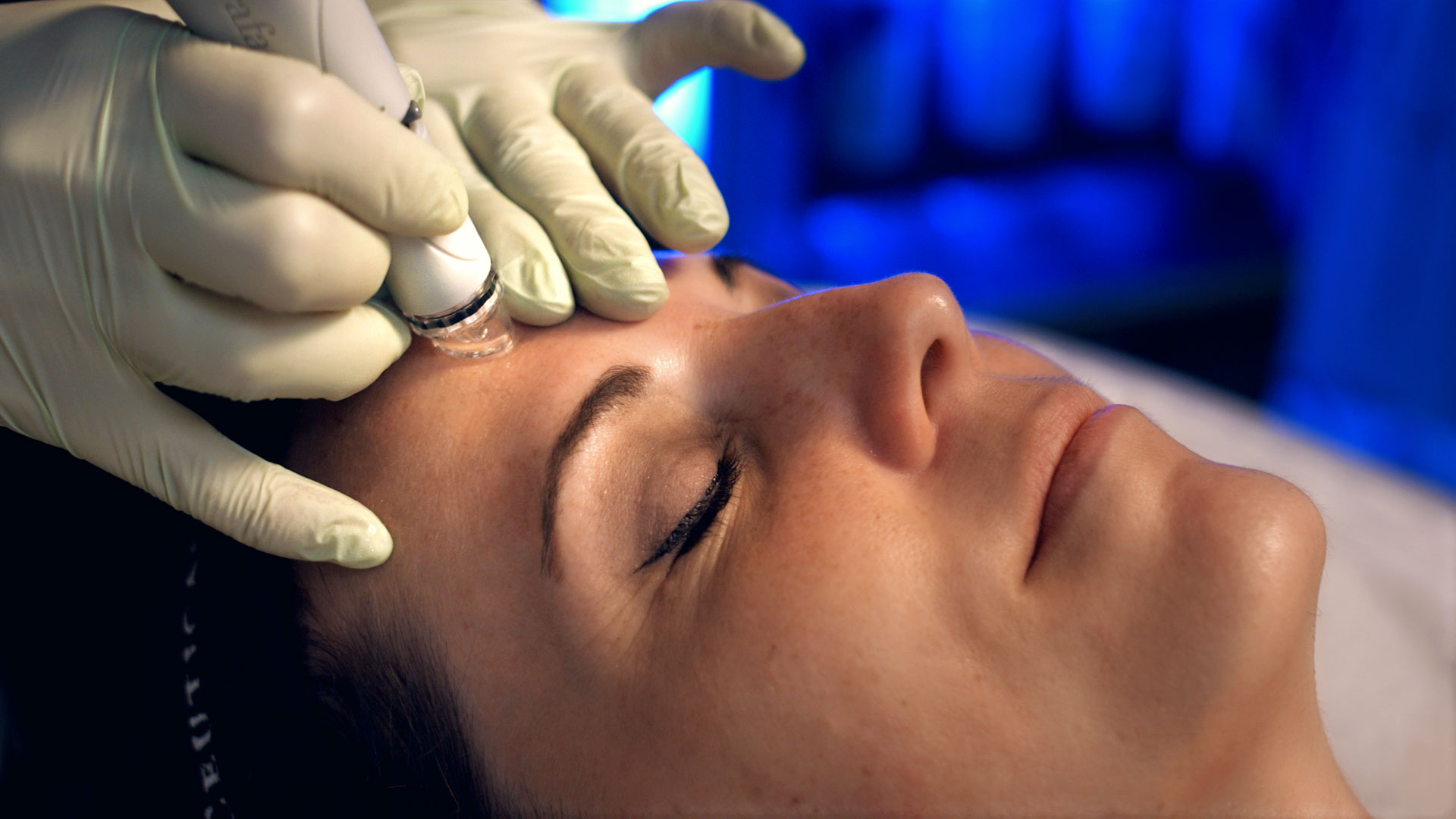 HydraFacial Treatment Commercial Photography for Riverchase Dermatology.