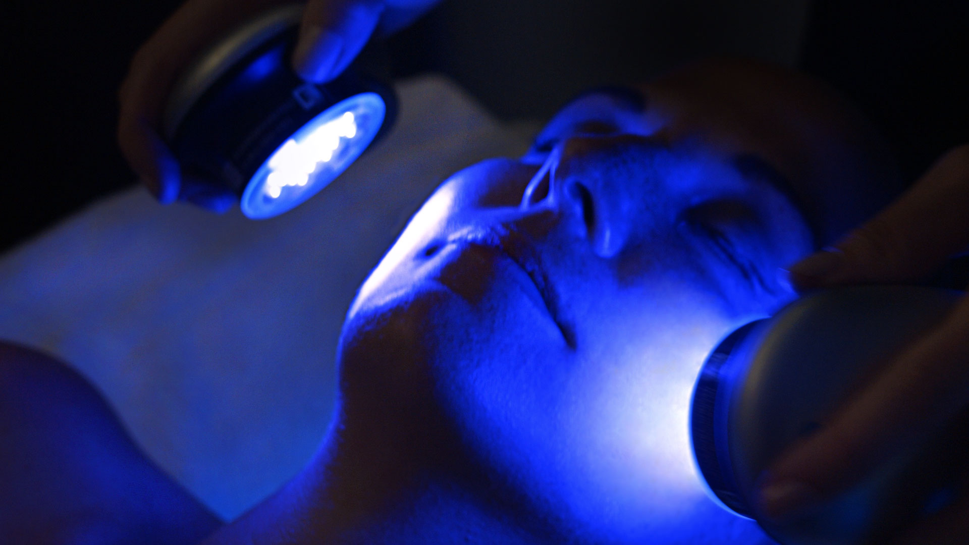 HydraFacial Photo at Riverchase Dermatology in Fort Myers, FL