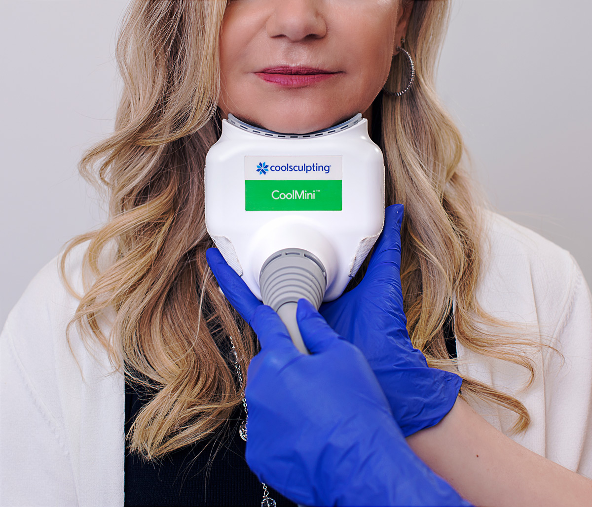 CoolSculpting neck treatment at Riverchase Dermatology in Miami, FL.